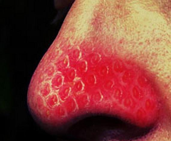 イチゴ鼻1